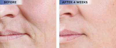 Beverly hills md lift firm sculpting cream order now share the